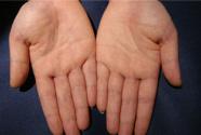 从手相里识别疾病的风险